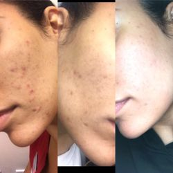 acne_combination